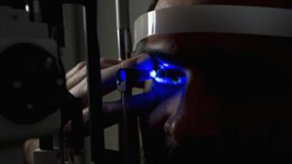SLT Laser